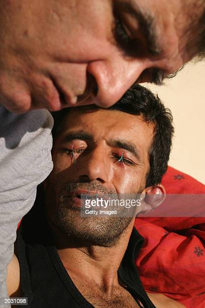 Iranian asylum seeker Abas Amini is seen with his eyes ears and mouth sewn shut May 27 2003 in Nottingham England Amini has taken this action in...