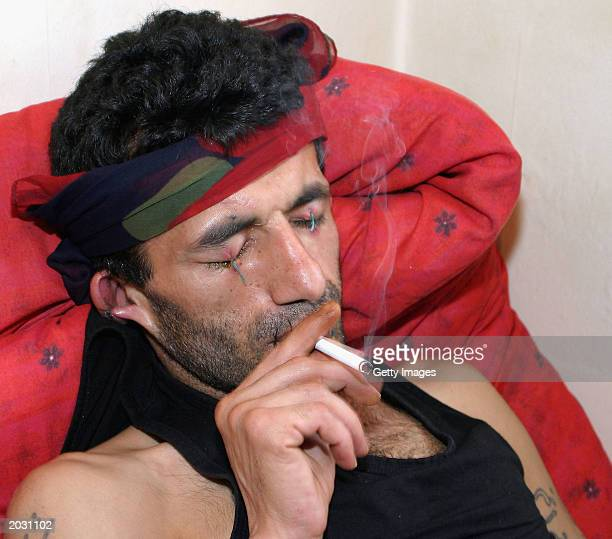 Iranian asylum seeker Abas Amini smokes a cigarette with his eyes ears and mouth sewn shut May 27 2003 in Nottingham England Amini has taken this...
