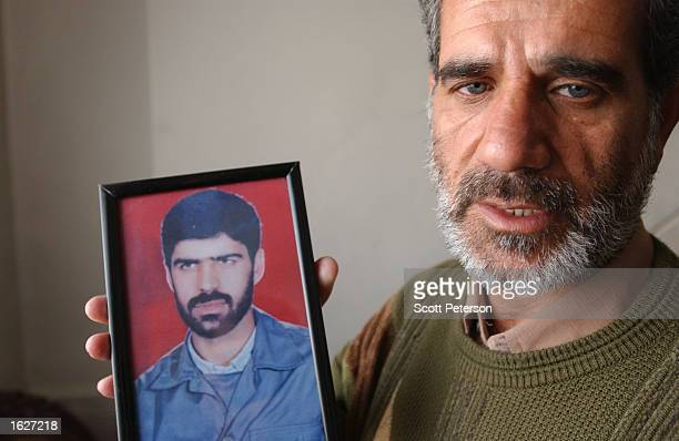 Iranian chemical weapon victim Colonel Mohammed Akbari a Revolutionary Guard soldier exposed to Iraqi mustard gas during the IranIraq war of the...
