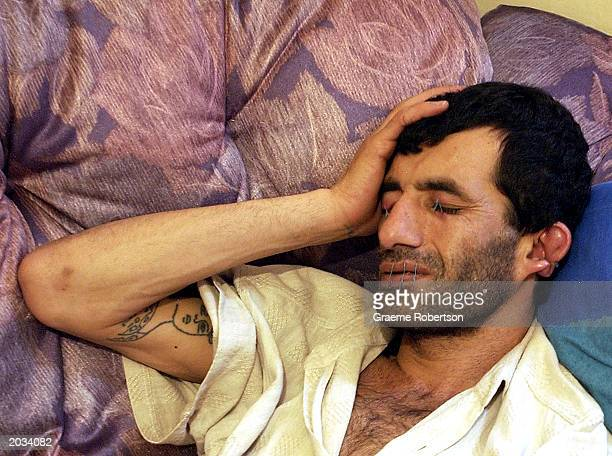 Iranian Kurdish refugee Abas Amini sits in his home in protest with his eyes mouth and ears sewn shut May 28 2003 in Nottingham England The 33yearold...