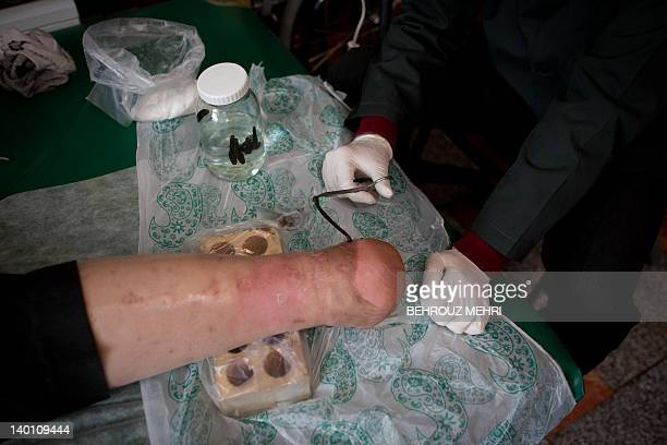 Iranian nurse AmirReza Safaei puts a leech on the amputated leg of Hassan Soroor who lost his leg to diabetes during 'Leech Therapy' at a traditional...