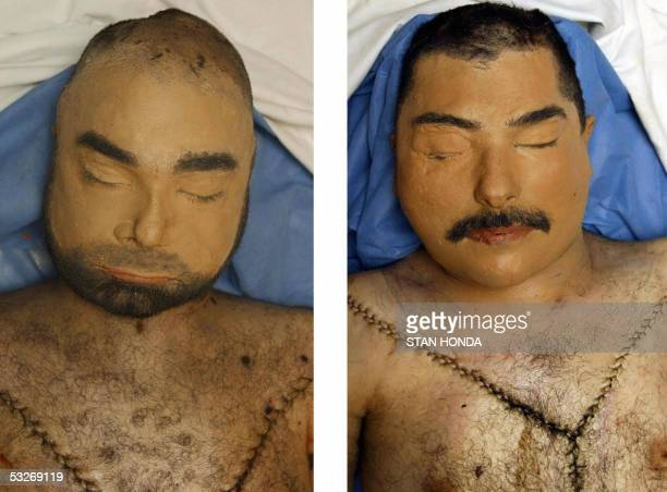 This combo of pictures dated 25 July 2003 shows corpses said to be of former Iraqi dictator Saddam Hussein's sons Uday and Qusay who US forces...