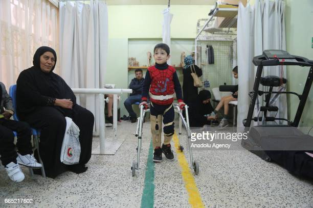 Iraqi people who lost their limbs due to civil war and terror get treatment at ICRC Erbil physical rehabilitation centre in Erbil Iraq on April 3 2017