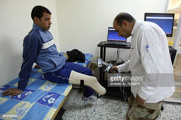 Iraqi soldier Ali Khalid who lost part of his leg in an improvised explosive device bombing in mid2007 is examined by a doctor during at the newly...