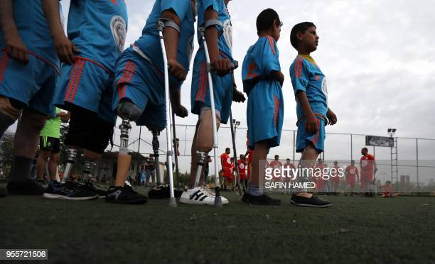 Iraqis who lost their limbs in the government offensive to retake the city of Mosul from the Islamic State group gather to play football in Arbil the...
