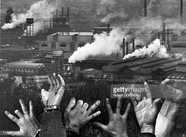 Iron And Steel Industry's Hands Photomontage Of Mutilated Hands Of Workers With Steel Factories In The Background Thionville Lorraine