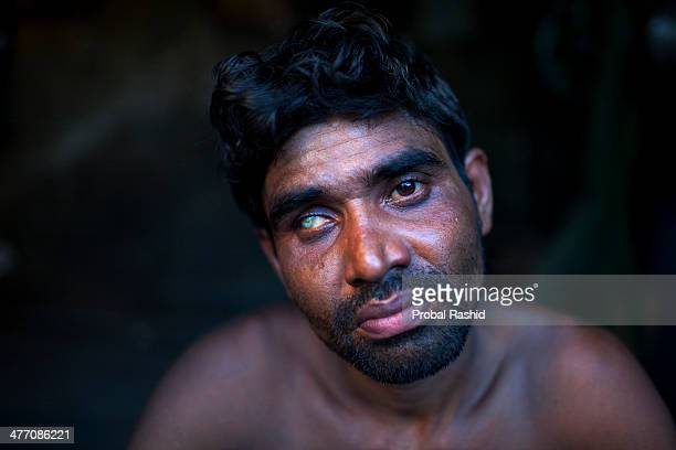 KERANIGANJ DHAKA BANGLADESH UZZAL is 33 years old and is a shipyard worker who lost one eye working without goggles There are more than 35 shipyards...