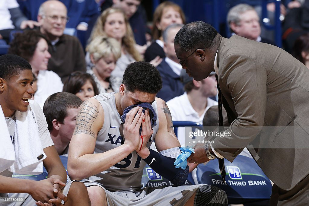 Isaiah Philmore #31 of the Xavier Musketeers nurses a bloody nose during the game against the Memphis Tigers at Cintas Center on February 26, 2013 in Cincinnati, Ohio. Xavier defeated Memphis 64-62.
