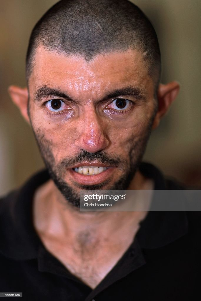 Ismail Mohammed Nouri al-Hakim, 33, thought by the jailors to be suffering from mental illness, is seen at an Iraqi detention center July 19, 2007 in Baghdad, Iraq. He has not been in contact with his family for three months, he says, and was arrested when he was the bus driver of a bus being used by insurgents. The Iraqi detention facility at Forward Operating Base Justice in west Baghdad holds nearly a thousand men in an area designed for 300, from insurgents who have killed dozens to some who were likely simply swept up in raids and were in the wrong place at the wrong time.
