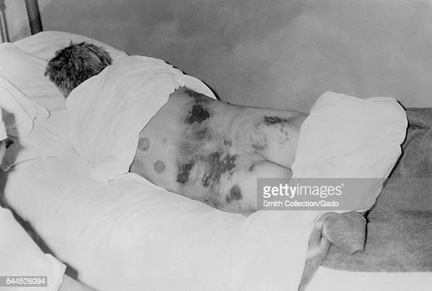 Isolated male patient diagnosed with CrimeanCongo hemorrhagic fever 1969 CrimeanCongo Hemorrhagic Fever is a tickborne hemorrhagic fever with...