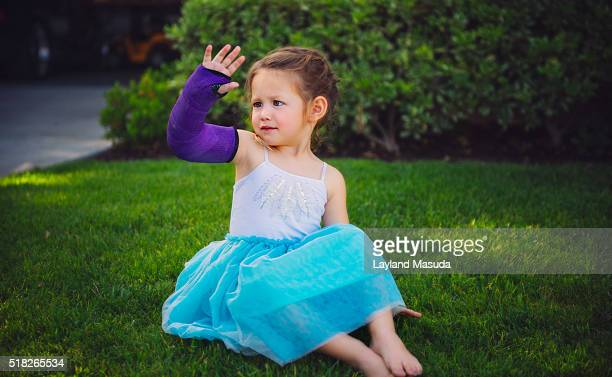 it hurt - little girl showing arm in cast - broken arm stock pictures, royalty-free photos & images