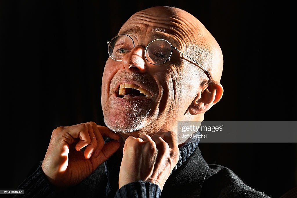 Surgeon Promising Head Transplants By 2017 Speaks In Glasgow : News Photo