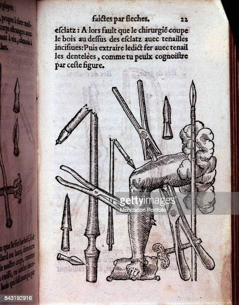 Italy Lombardy Milan Braidense National Library Whole artwork view Surgical forceps Figure from the medical and surgical essay by Ambroise Paré...