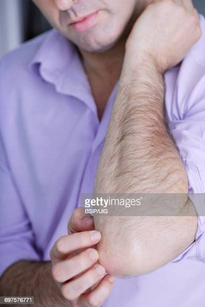 Itching in a man