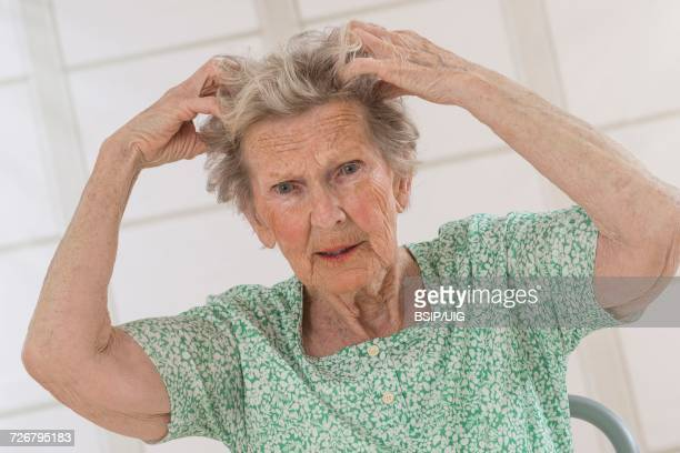 itching in a senior - psoriasis stockfoto's en -beelden