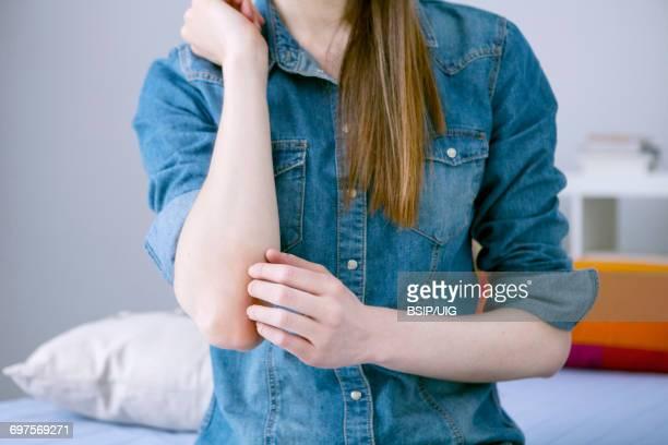 itching in a woman - psoriasis stockfoto's en -beelden