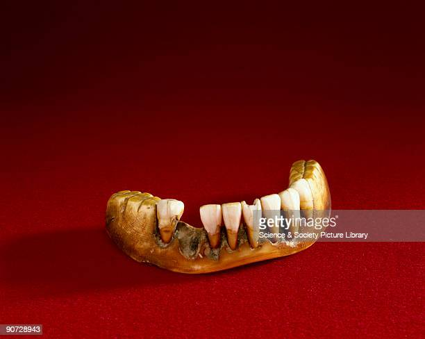 Ivory denture with pinned human anteriors rotted
