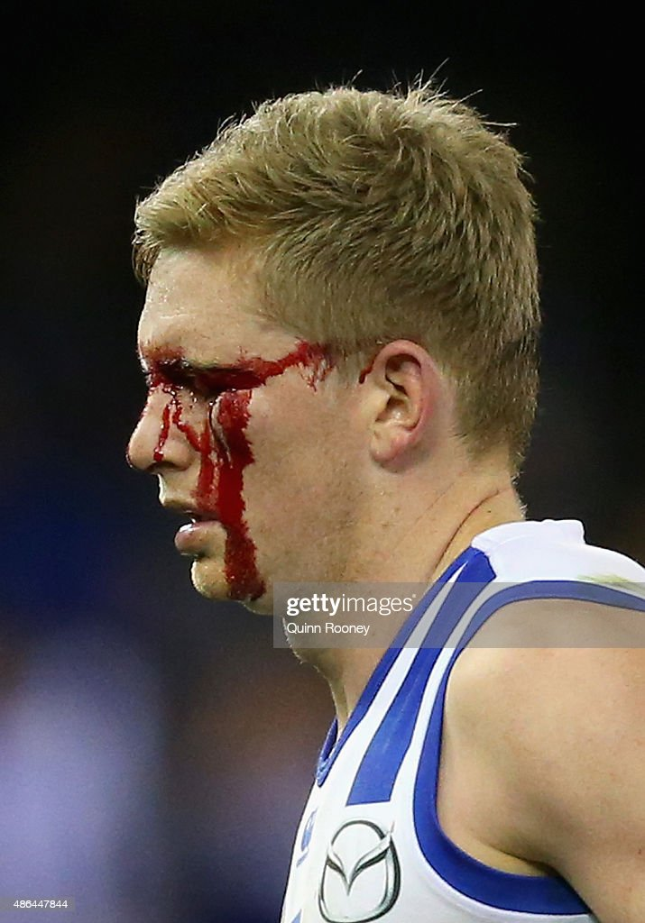 Jack Ziebell of the Kangaroos comes off the ground with a cut eye during the round 23 AFL match between the Richmond Tigers and the North Melbourne Kangaroos at Etihad Stadium on September 4, 2015 in Melbourne, Australia.