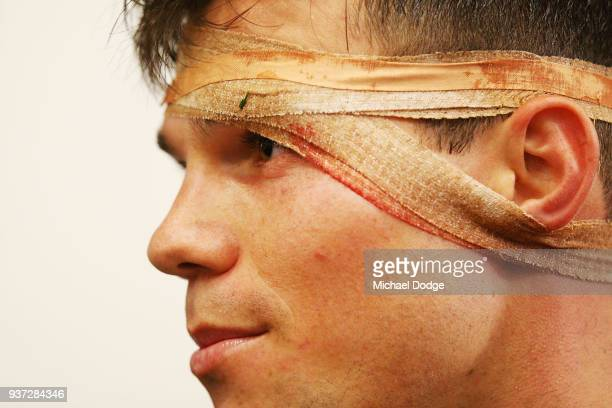 Jaeger O'Meara of the Hawks with a bandaged head during the round one AFL match between the Hawthorn Hawks and the Collingwood Magpies at Melbourne...