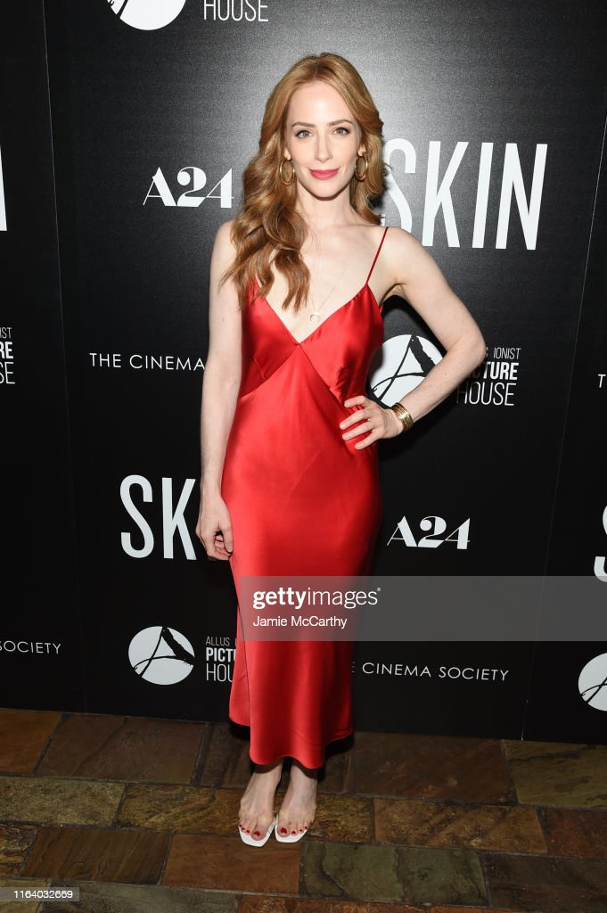 """Skin"" New York Screening : News Photo"