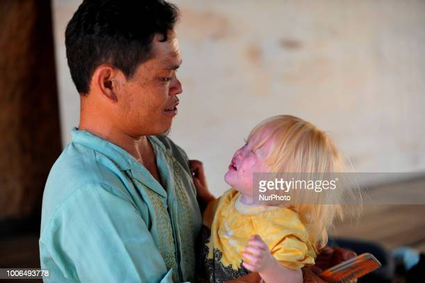 Jajang Gunuwan 3 years old one of the children of Albino descent with his father in the town Ciburuy Garut West Java on July 262018 There are nine...