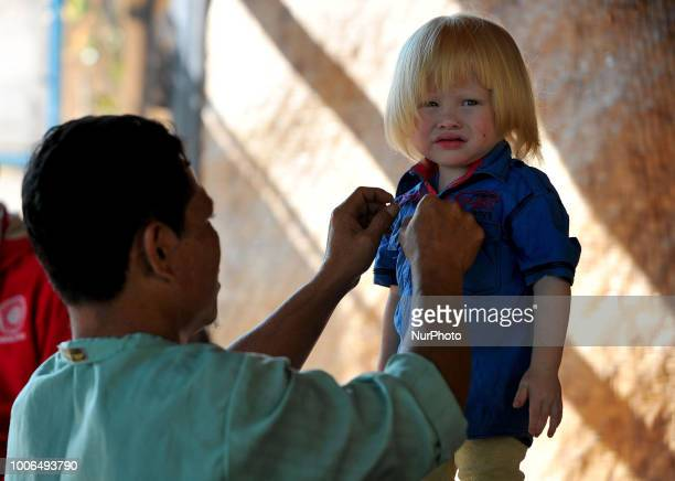 Jajang Gunuwan 3 years old one of the children of Albino descent with his father in the town Ciburuy Garut West Java on July 262018There are nine...