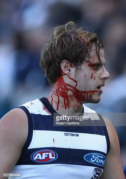 Jake Kolodjashnij of the Cats is seen with blood streaming from his face after a collision with team mate Lachie Henderson during the round 23 AFL...