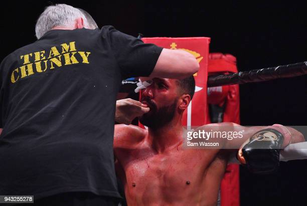 James DeGale has a cut tended to by his corner during his IBF super middleweight title fight against Caleb Truax at The Joint inside the Hard Rock...