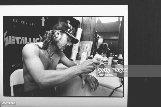 James Hetfield lead singer and rhythm guitarist for the rock group Metallica putting aloe on burn scars on his arm inflicted when he strayed into the...