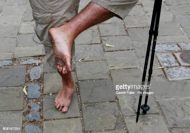 James Milton a former Army captain shows his feet to the cameras after completing a 130mile barefoot charity walk from Winchester cathedral to...
