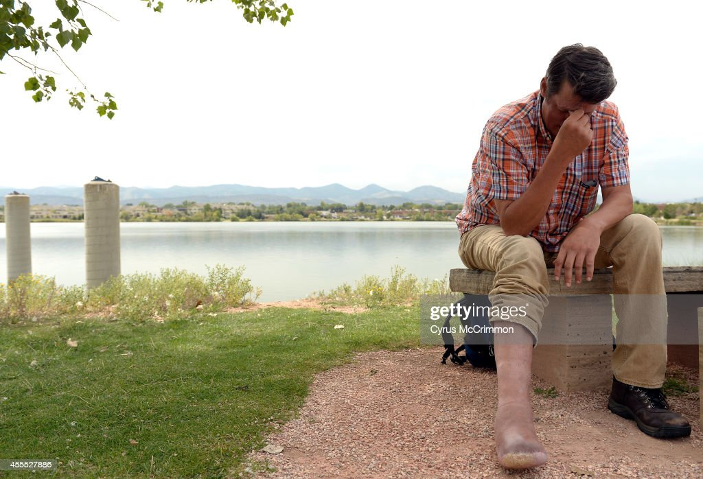 James Neisler is suing Arapahoe County Jail because of the lack of  medical care  while in jail. He has had all the toes on his right foot amputated after his condition was left untreated and he developed a bone infection : News Photo