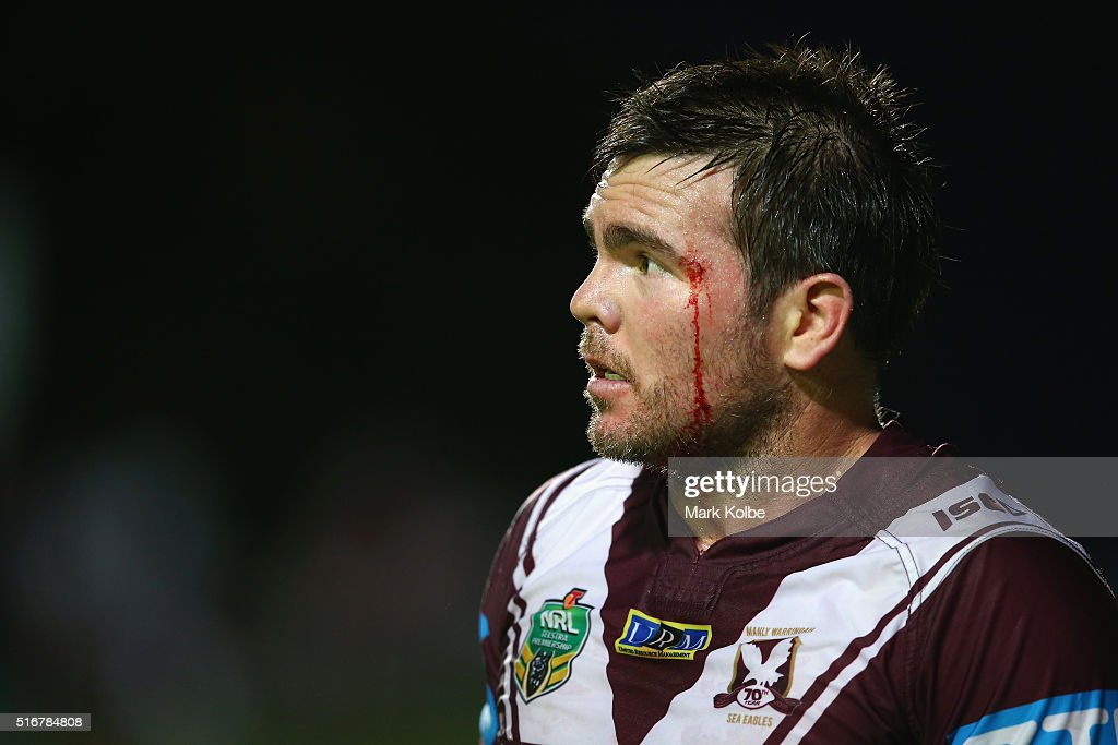 NRL Rd 3 - Sea Eagles v Sharks