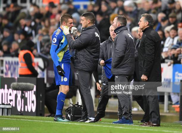 Jamie Vardy of Leicester City is given treatment following in injury during the Premier League match between Newcastle United and Leicester City at...