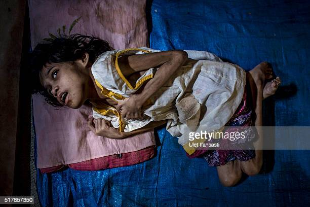 Jamila who suffers from Down syndrome lies on a floor mat inside a house at Sidowayah Village in Jambon subdistrict on March 25 2016 in Ponorogo...