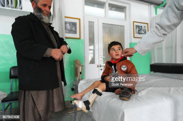 Inside the Kabul Orthopedic Center of the International Committee of the Red Cross Afghan patients wounded by landmines are fitted with artificial...