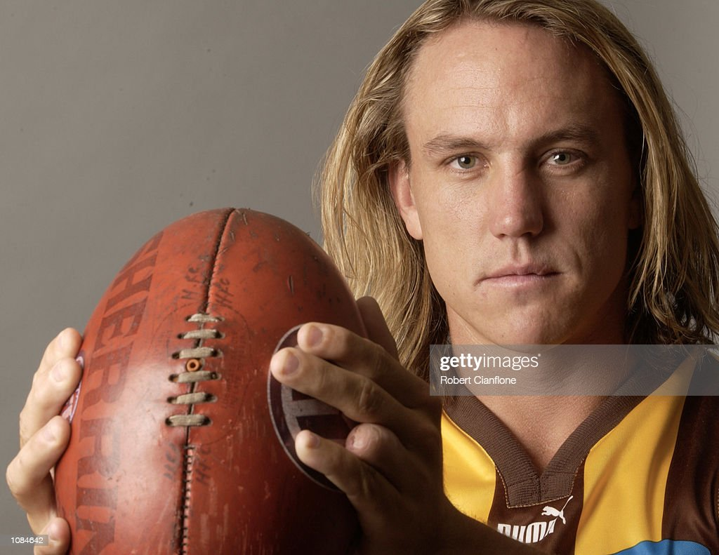 Daniel Chick of the Hawthorn Football Club shows the injured finger