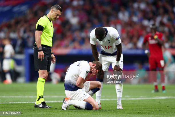 Jan Vertonghen of Tottenham Hotspur reacts with an injury during the UEFA Champions League Final between Tottenham Hotspur and Liverpool at Estadio...