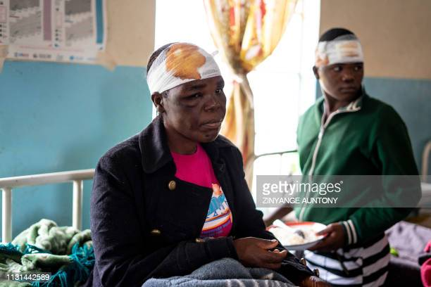 Jane Chitsuro a cyclone survivor sits on a hospital bed at Chimanimani Rural district hospital Manicaland Province eastern Zimbabwe on March 18 2019...