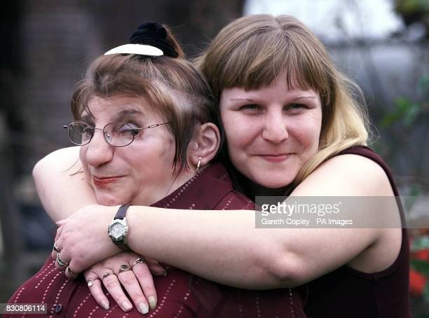 Janet Craven with her niece Andrea Dalton in Lupset Wakefield West Yorkshire after her groundbreaking operation which attached silicone ears were...