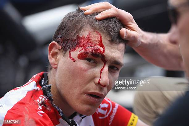 Janez Brajkovic of Slovenia and team Radioshack is dazed after a heavy fall during Stage 5 of the 2011 Tour de France from Carhaix to Cap Frehel on...