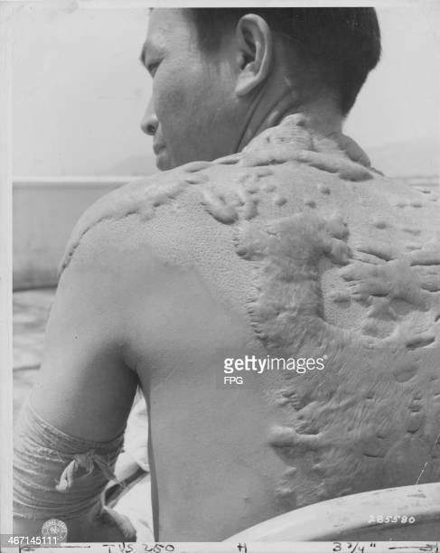 A Japanese casualty from World War Two now part of the Atomic Bomb Casualty Commission his body covered in keloid scars from the flash burn at...