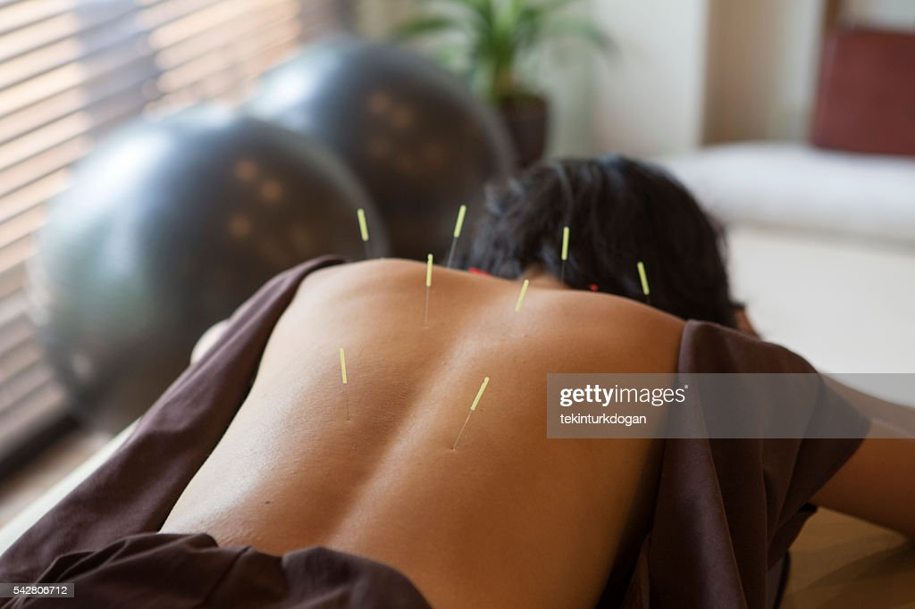 japanese female get acupuncture treatment in kyoto japan : Stock Photo