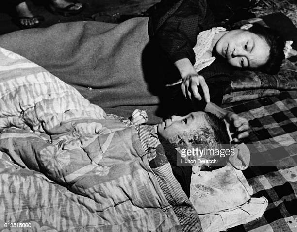 Japanese mother, injured herself in the atomic bomb blast on Hiroshima, leans over to adjust a bandage on her small child, the side of whose face and...