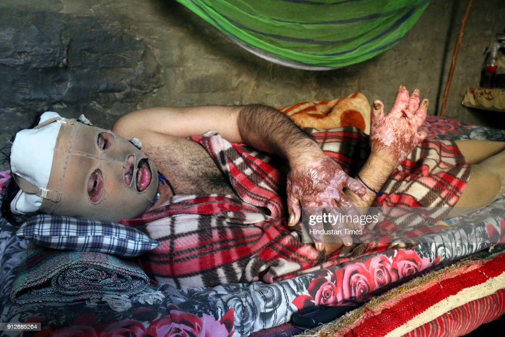 Jaskaran Singh having suffered serious burn injuries in Maur bomb blasts at his home on January 31 2018 in Maur India Residents of Maur under the...