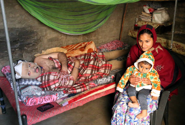 Jaskaran Singh having suffered serious burn injuries in Maur bomb blasts with his wife and one year old son at his home on January 31 2018 in Maur...