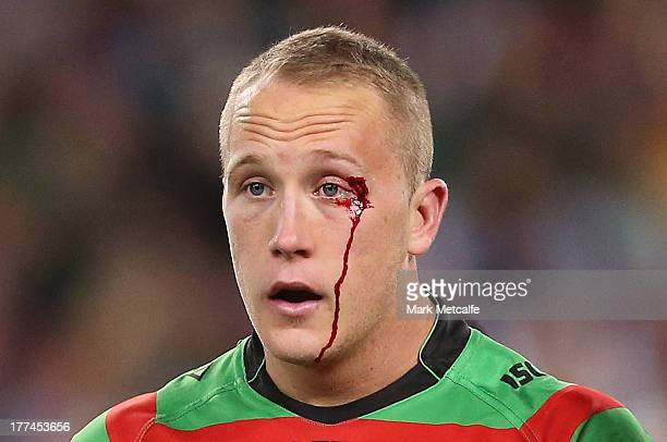 Jason Clark of the Rabbitohs has treatment for a cut eye during the round 24 NRL match between the South Sydney Rabbitohs and the Canterbury Bulldogs...