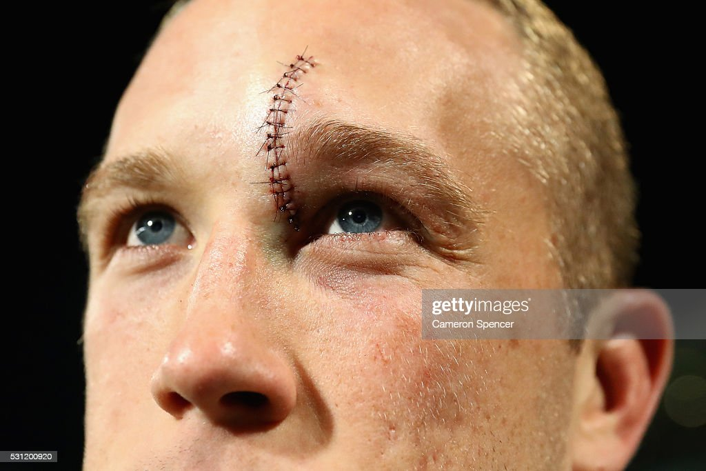 Jason Clark of the Rabbitohs looks on with stitches in his head following the round 10 NRL match between the Parramatta Eels and the South Sydney Rabbitohs at Pirtek Stadium on May 13, 2016 in Sydney, Australia.