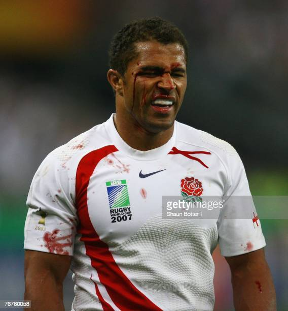 Jason Robinson of England grimaces with blood on his face during the Rugby World Cup Pool A match between England and South Africa at the Stade de...