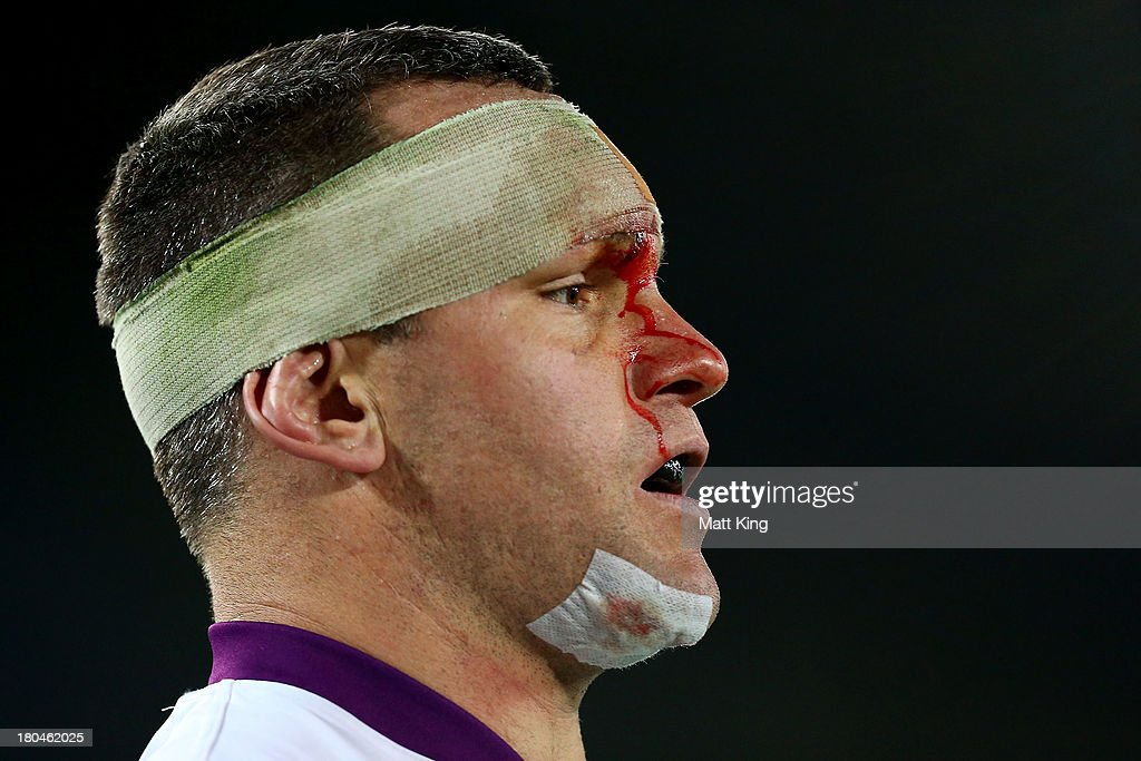 NRL Qualifying Final - Rabbitohs v Storm