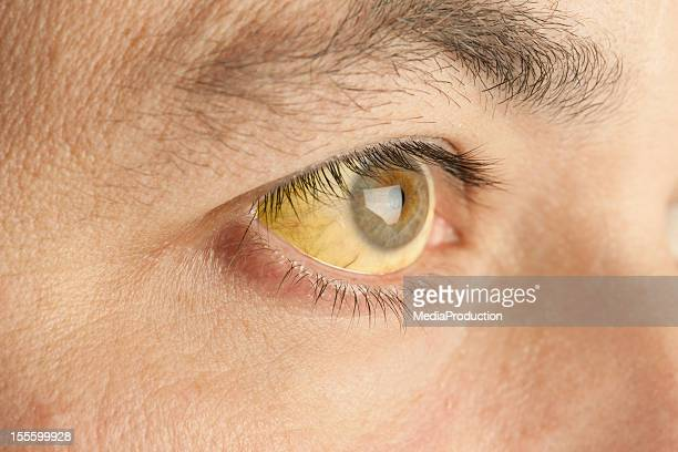 jaundice - cirrhosis stock pictures, royalty-free photos & images